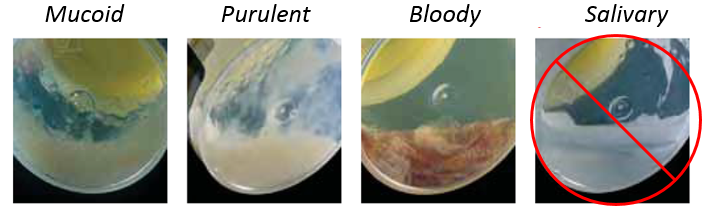 examples of Sputum test